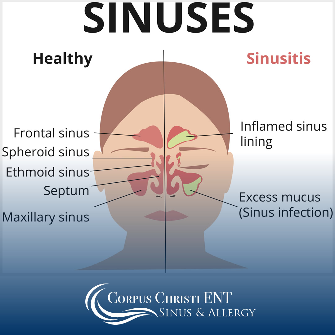 sinus endoscopy