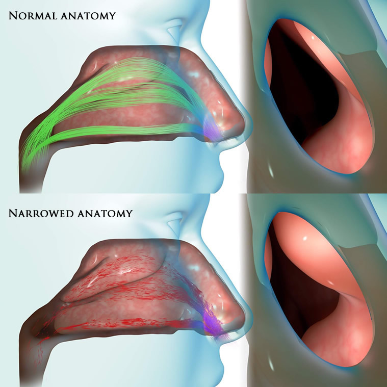 Nasal Obstruction Treatment